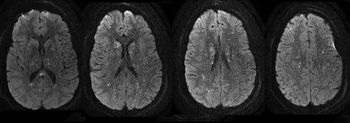 Brain MRI with Axial DWI cuts demonstrating scattered diffusion-restricted lesions predominantly  involving the supratentorial cerebrum.