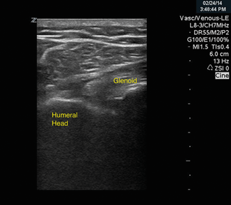 Image 2. Post-reduction ultrasound of the shoulder joint, showing the humeral head again in close proximity to the glenoid.