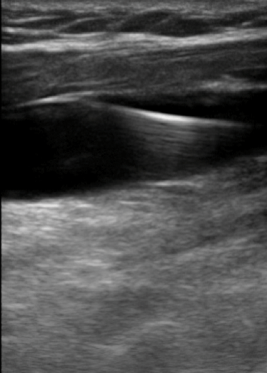 Longitudinal view of the internal jugular vein showing appropriate guideline wire placement within the vessel.