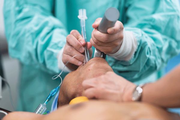 post intubation hemodynamic collapse in the critically ill patient emra