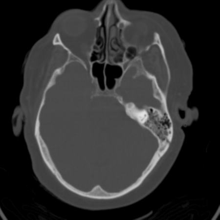 Image 2. Subtle left temporal bone fracture, seen through the mastoid on CT imaging.