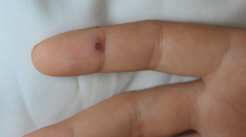 Lesions Emra Form a small ball, between the size of a bee bee. lesions emra