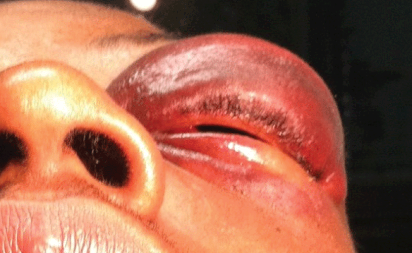 Image 1. Left lid ecchymosis and edema after blunt orbital trauma. This patient reported tripping and falling forward onto the corner of the kitchen counter, resulting in swelling, discoloration, decreased vision, and inability to open the lids.