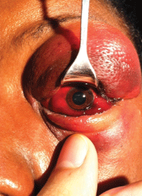 Image 2. The same patient from Image 1. Because of the severe lid edema, a lid retractor is used to visualize the globe.