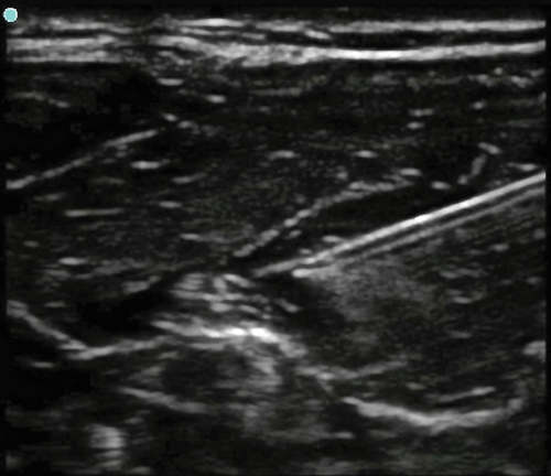Image 7. Needle tip injecting anesthetic around the nerve