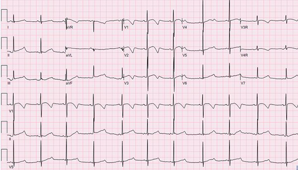 The Pediatric ECG and Long QT Syndrome EMRA