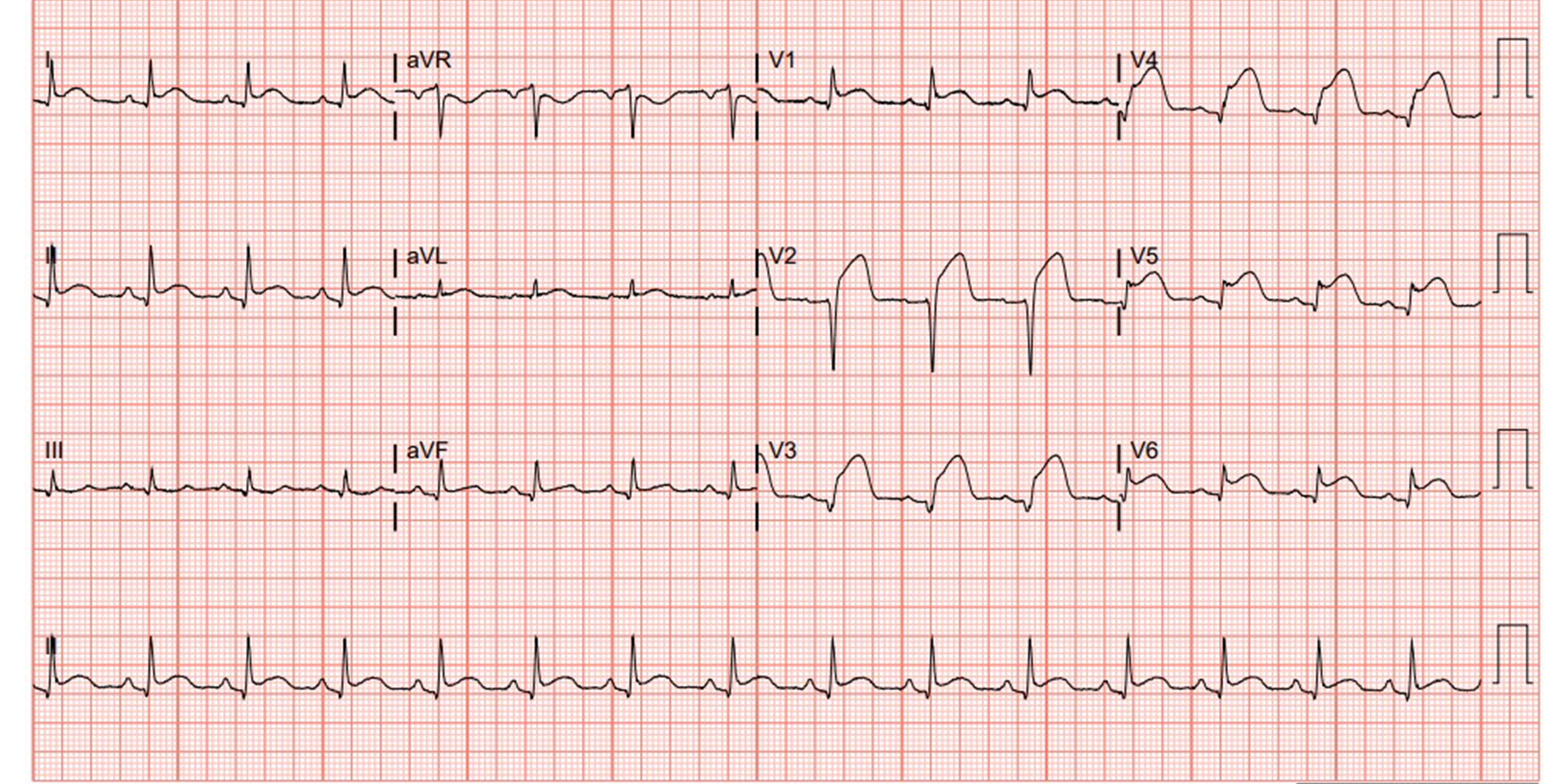 Figure 2 - Repeat EKG