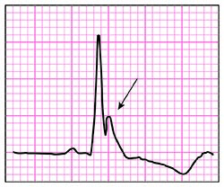 46-5 ECG Challenge - J-wave illustration.jpg