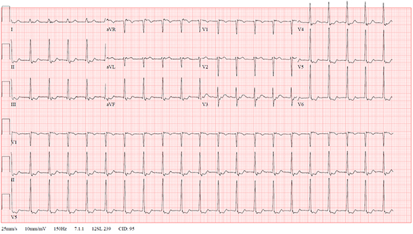 47-2 NSVT After REVERT figure-1-initial-ekg_web.jpg