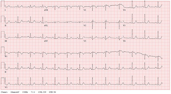 47-2 NSVT After REVERT figure-3-post-ekg_web.jpg