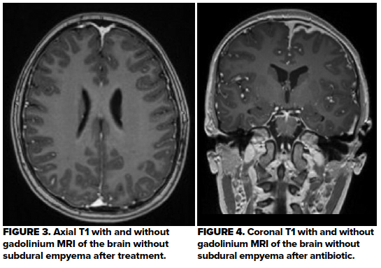 48-1 Pediatric subdural empyema Fig 3-4.png
